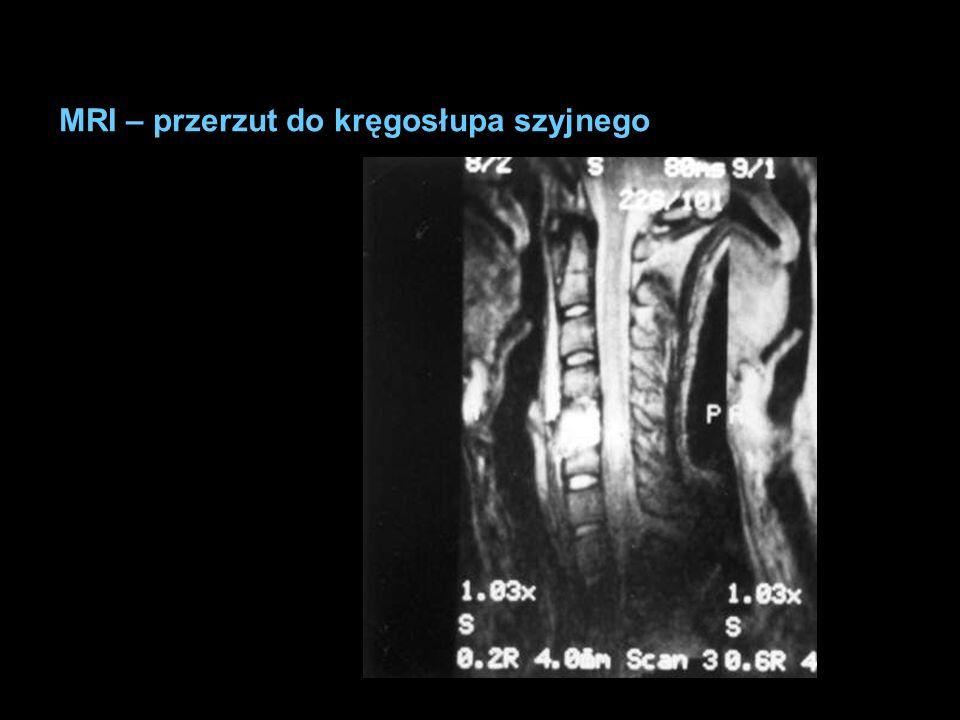 MRI – przerzut do kręgosłupa szyjnego