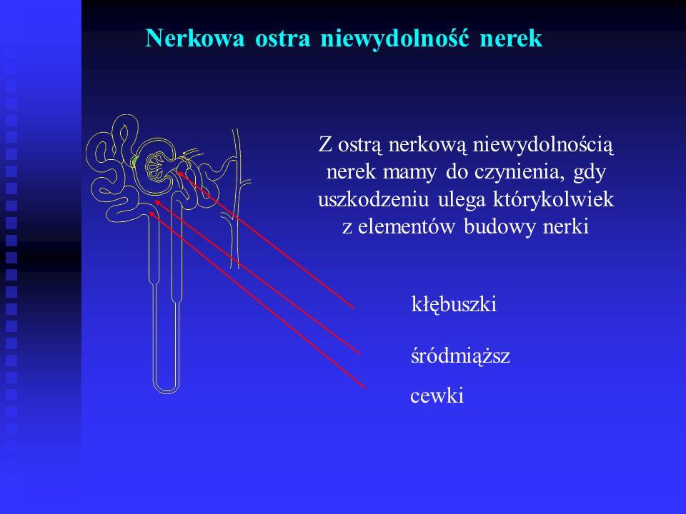 Nerkowa ostra niewydolność nerek