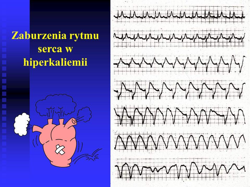 Zaburzenia rytmu serca w hiperkaliemii