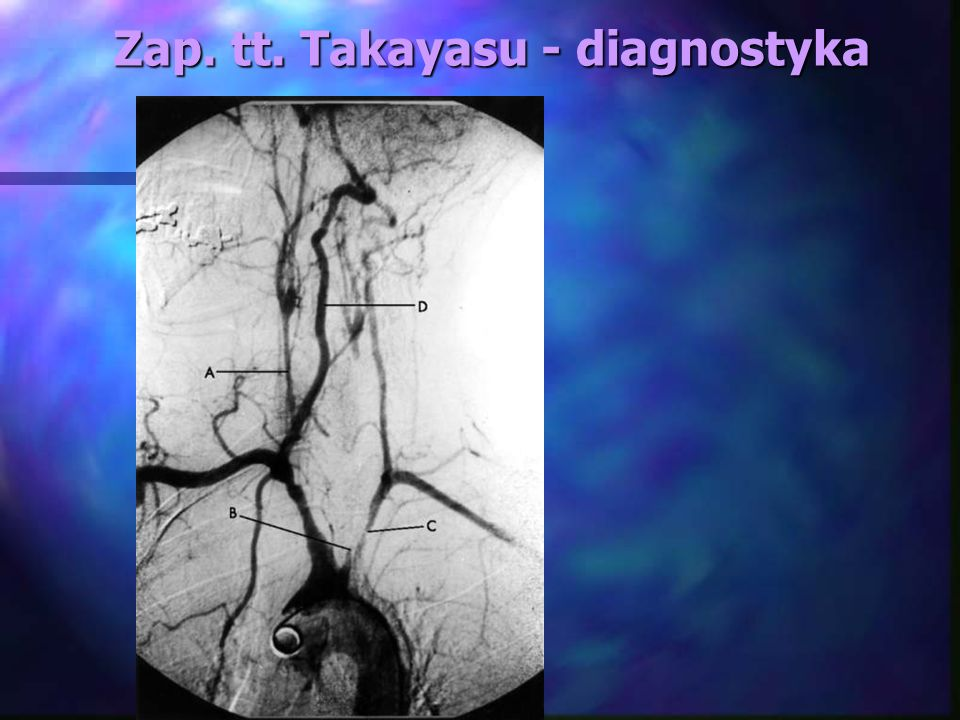 Zap. tt. Takayasu - diagnostyka