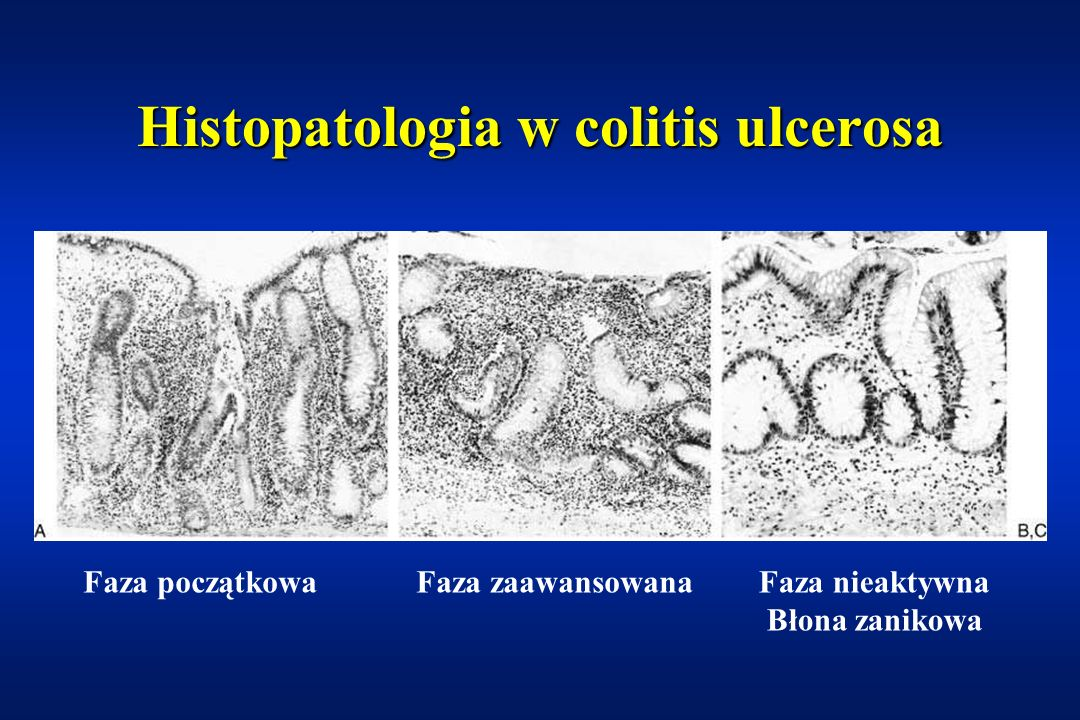 Histopatologia w colitis ulcerosa