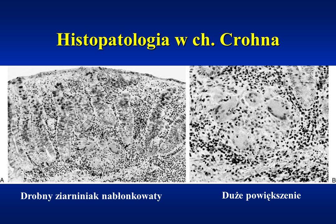 Histopatologia w ch. Crohna