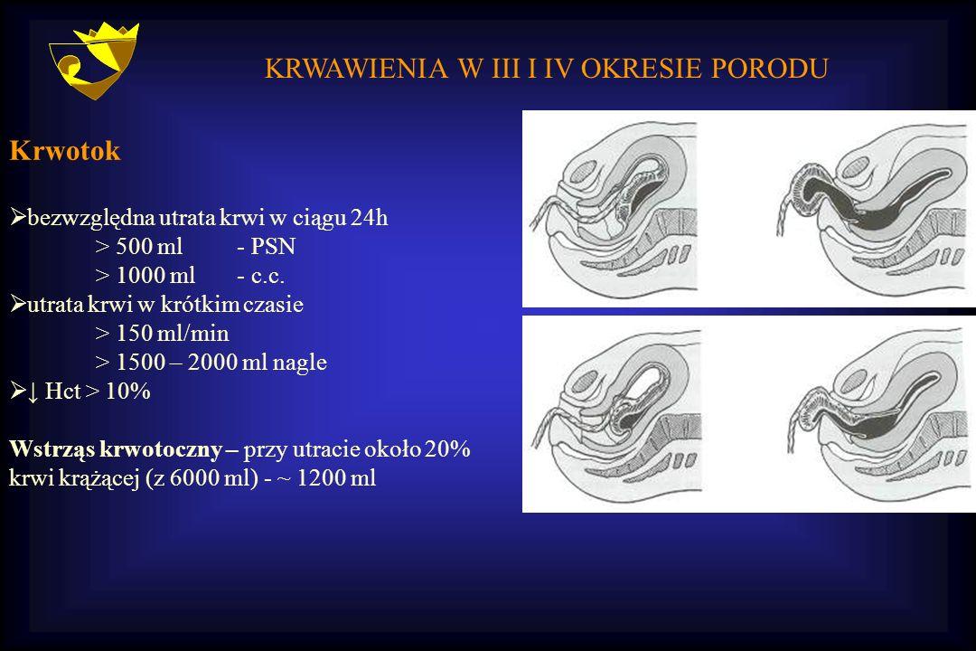 KRWAWIENIA W III I IV OKRESIE PORODU