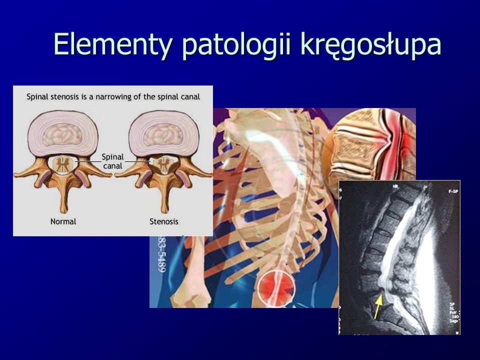 Elementy patologii kręgosłupa