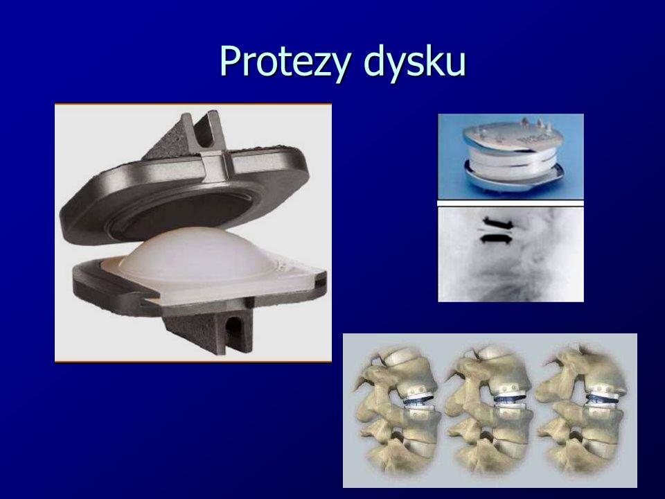 Protezy dysku