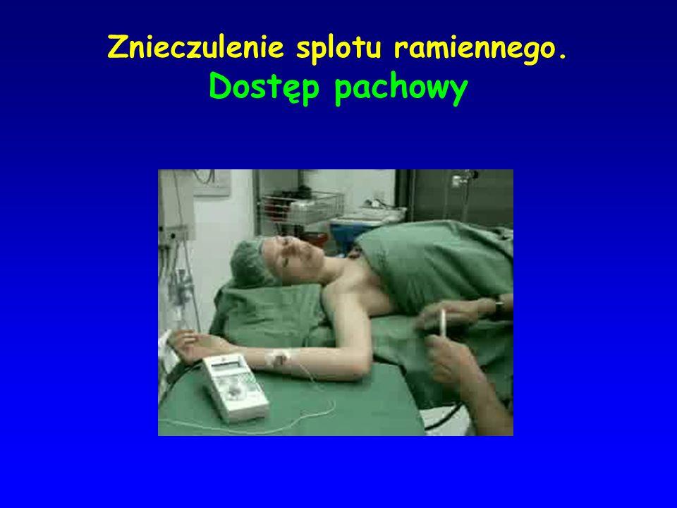 Znieczulenie splotu ramiennego. Dostęp pachowy