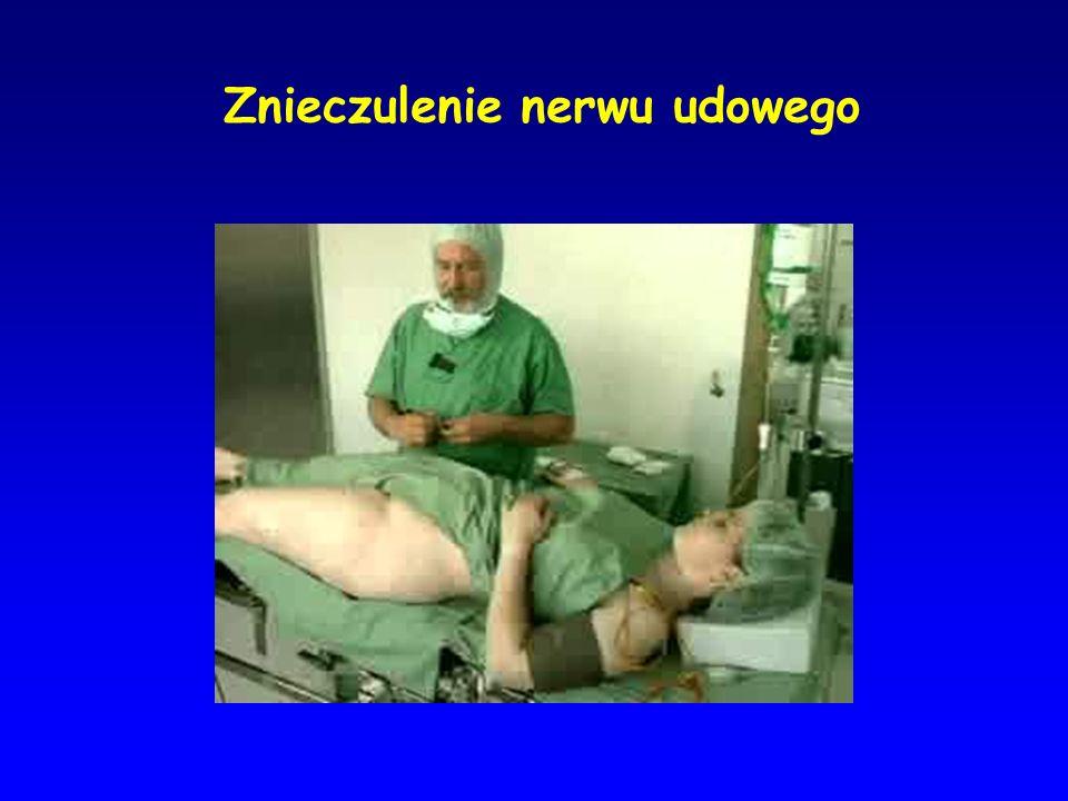 Znieczulenie nerwu udowego