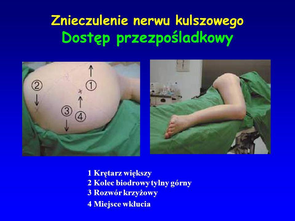 Znieczulenie nerwu kulszowego Dostęp przezpośladkowy