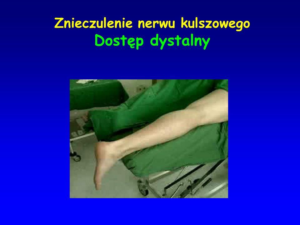 Znieczulenie nerwu kulszowego Dostęp dystalny