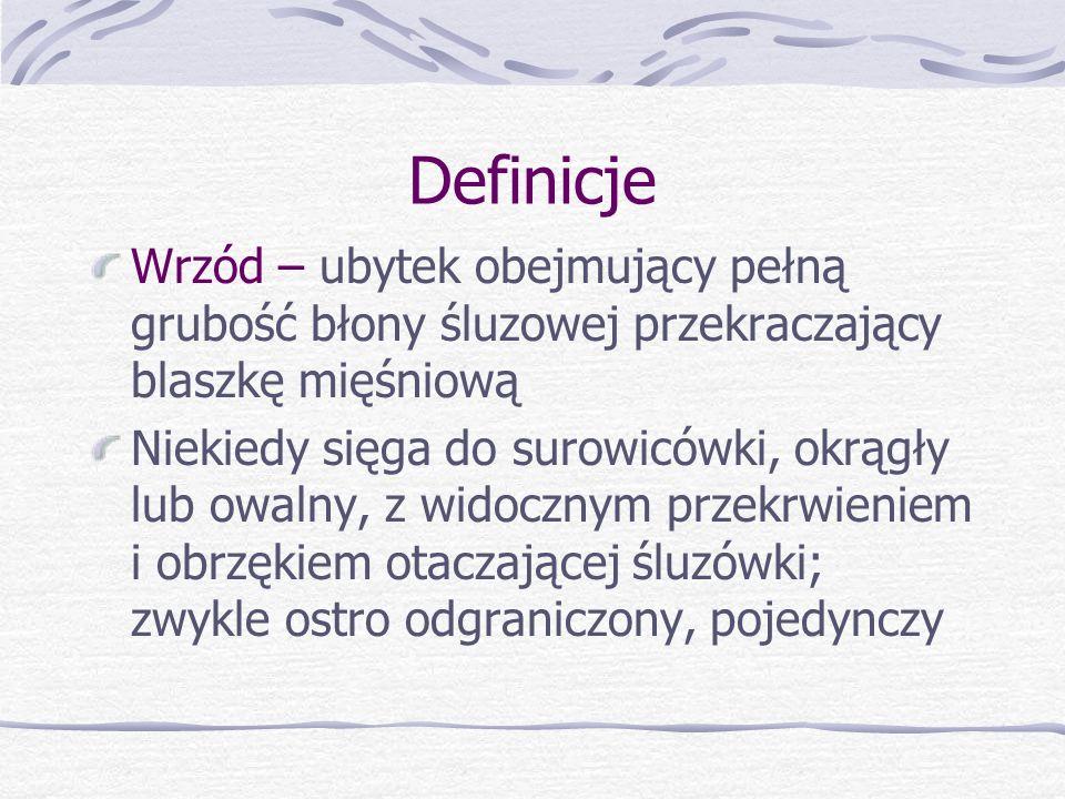 Definicje Wrzód – ubytek obejmujący pełną grubość błony śluzowej przekraczający blaszkę mięśniową.