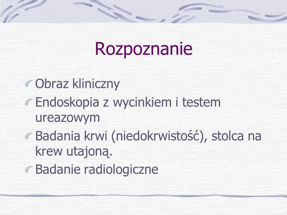 Rozpoznanie Obraz kliniczny Endoskopia z wycinkiem i testem ureazowym
