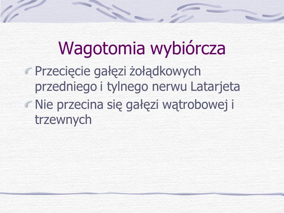 Wagotomia wybiórcza Przecięcie gałęzi żołądkowych przedniego i tylnego nerwu Latarjeta.