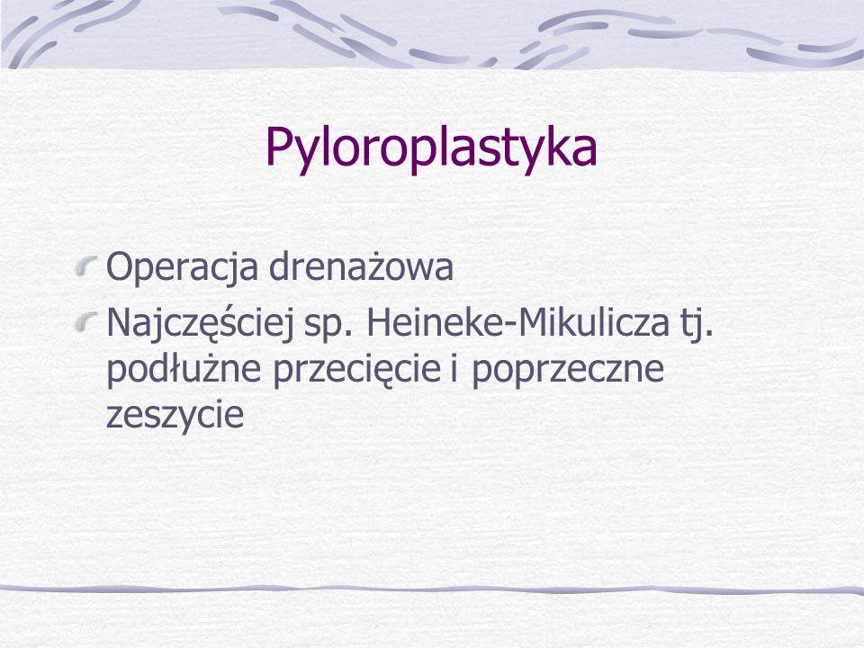 Pyloroplastyka Operacja drenażowa