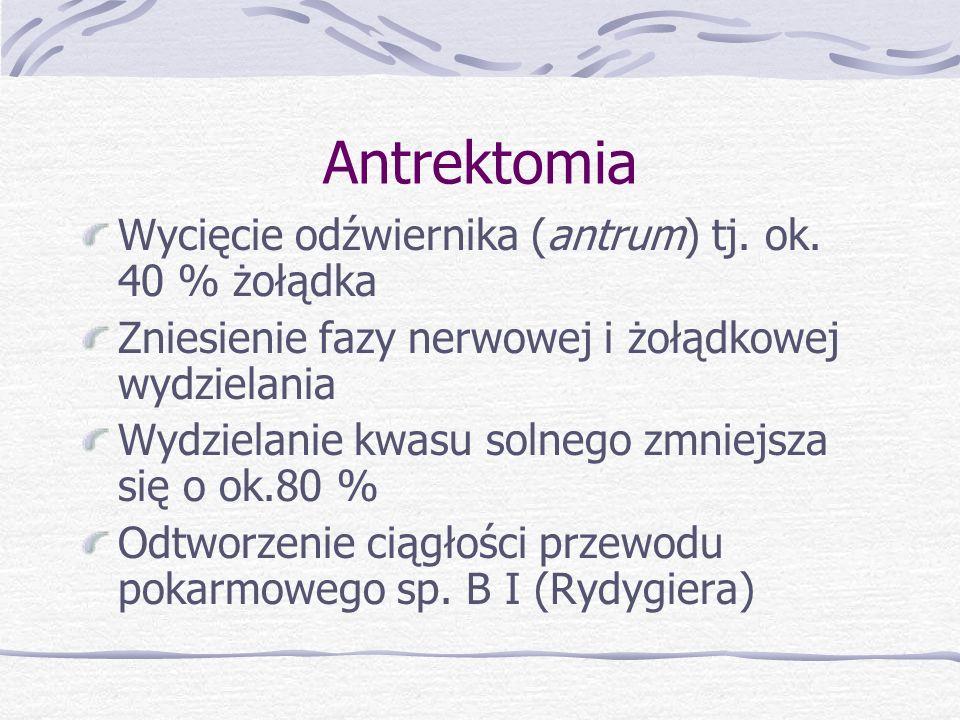 Antrektomia Wycięcie odźwiernika (antrum) tj. ok. 40 % żołądka