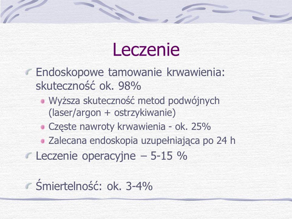 Leczenie Endoskopowe tamowanie krwawienia: skuteczność ok. 98%