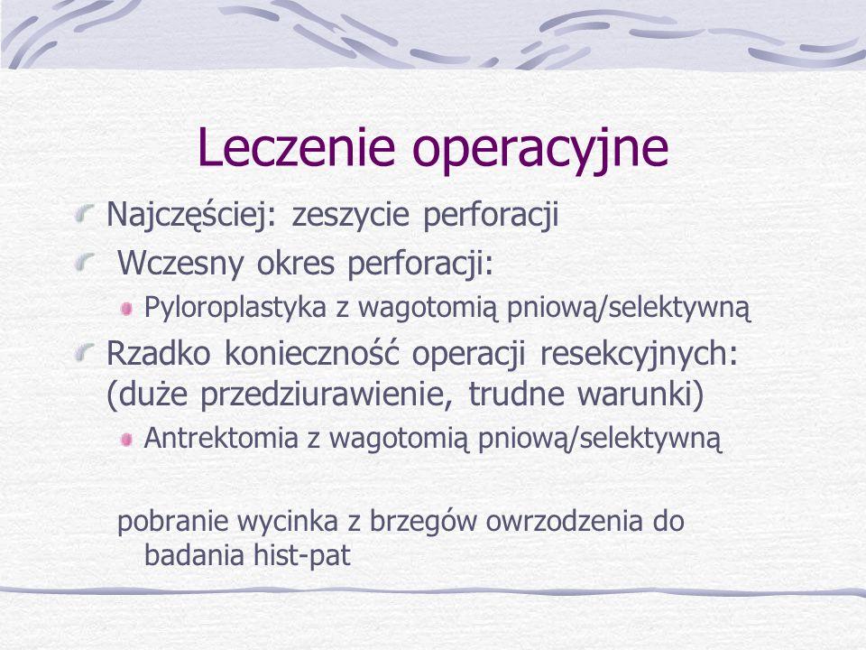 Leczenie operacyjne Najczęściej: zeszycie perforacji