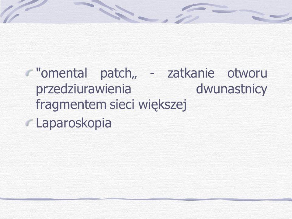 """omental patch"""" - zatkanie otworu przedziurawienia dwunastnicy fragmentem sieci większej"""