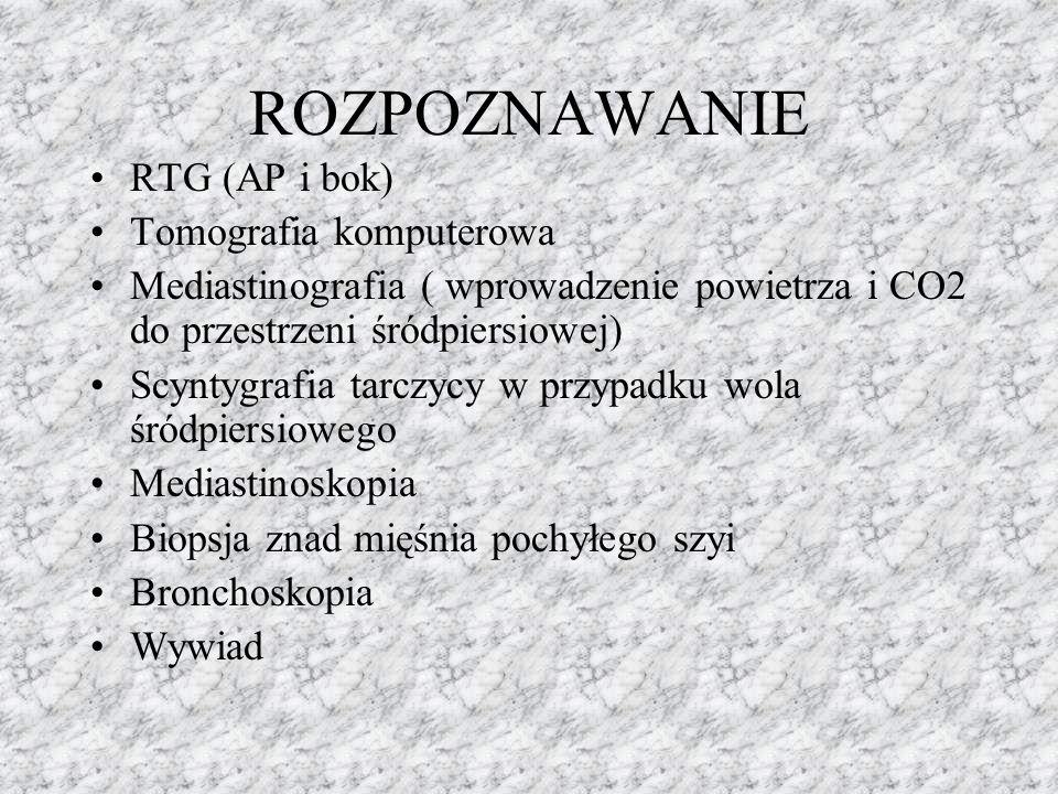 ROZPOZNAWANIE RTG (AP i bok) Tomografia komputerowa