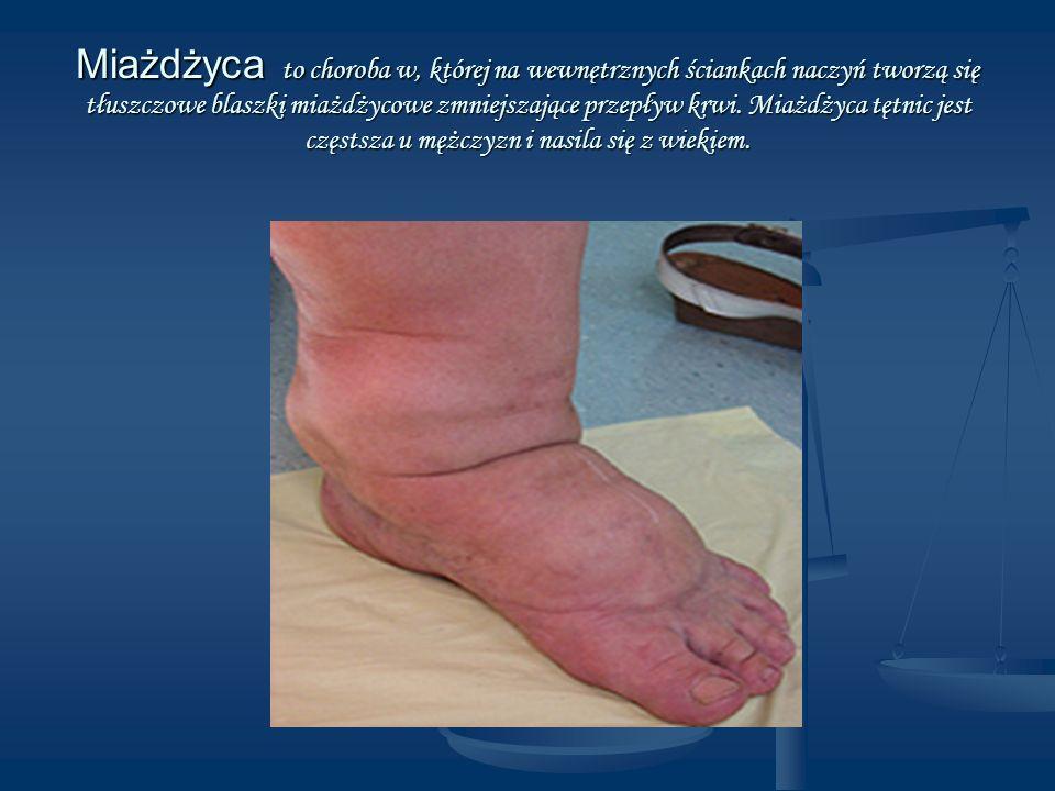 Miażdżyca to choroba w, której na wewnętrznych ściankach naczyń tworzą się tłuszczowe blaszki miażdżycowe zmniejszające przepływ krwi.