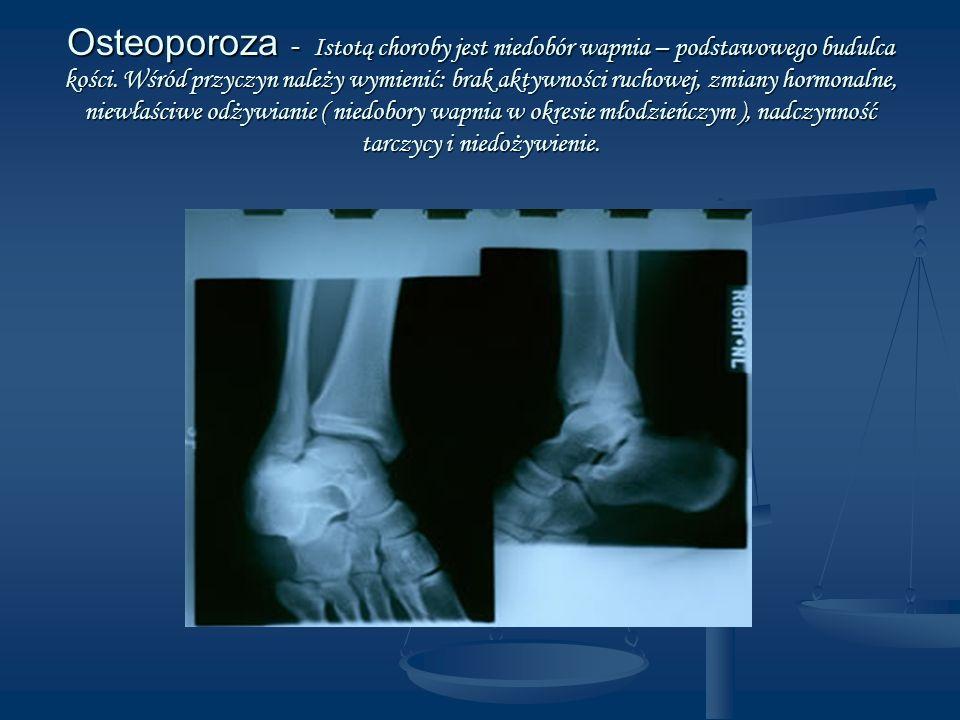 Osteoporoza - Istotą choroby jest niedobór wapnia – podstawowego budulca kości.
