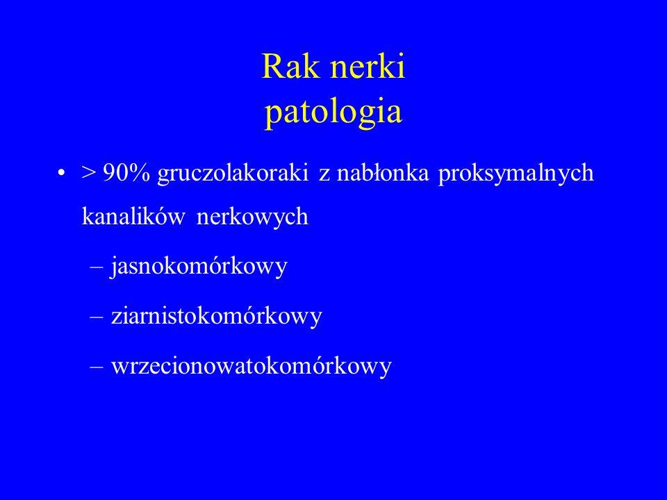 Rak nerki patologia > 90% gruczolakoraki z nabłonka proksymalnych kanalików nerkowych. jasnokomórkowy.