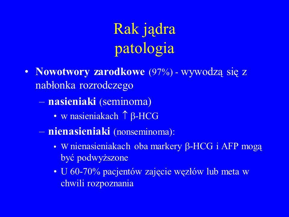 Rak jądra patologia Nowotwory zarodkowe (97%) - wywodzą się z nabłonka rozrodczego. nasieniaki (seminoma)