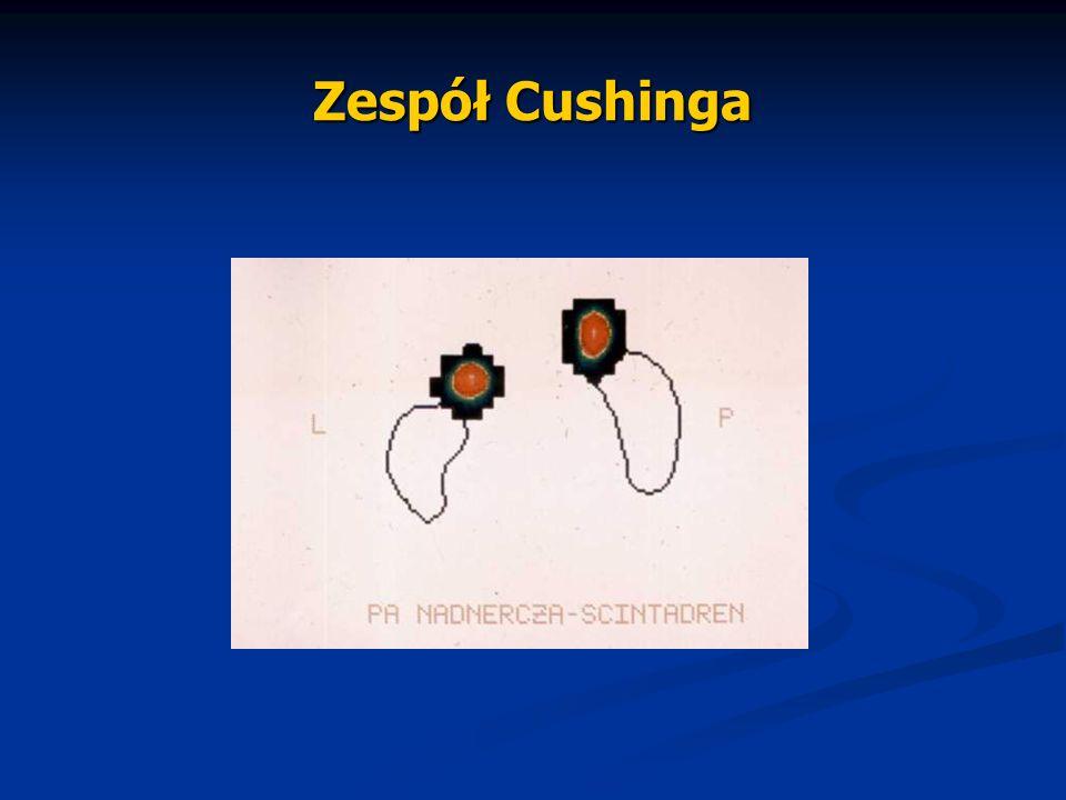 Zespół Cushinga