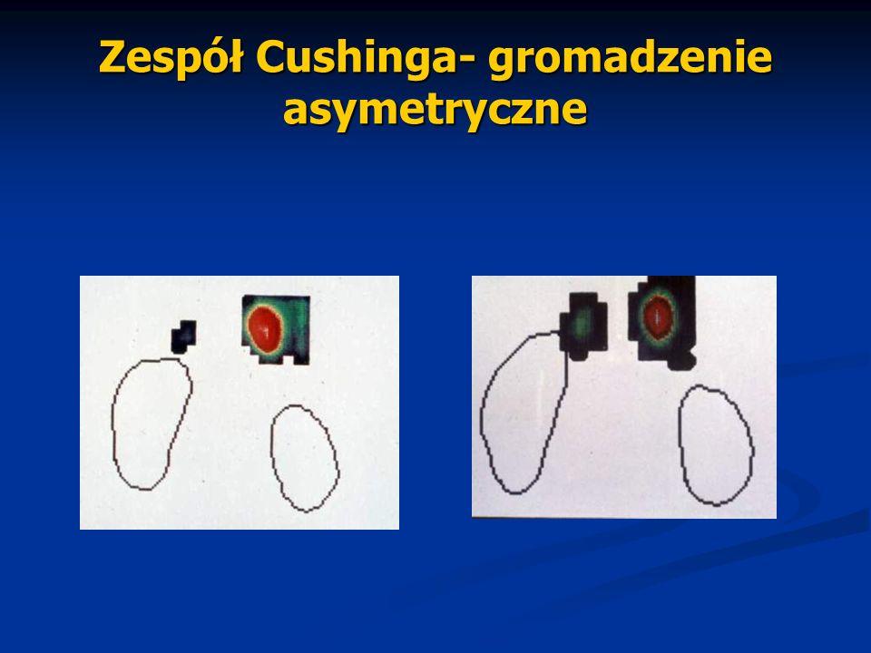Zespół Cushinga- gromadzenie asymetryczne