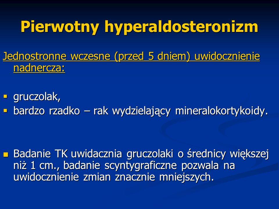 Pierwotny hyperaldosteronizm