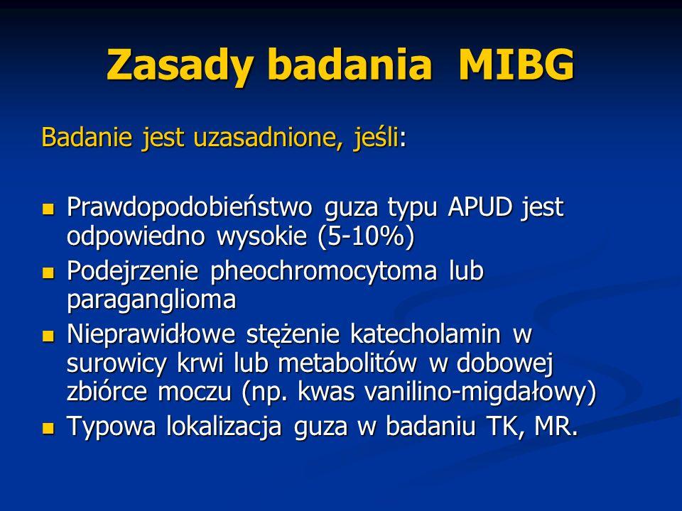 Zasady badania MIBG Badanie jest uzasadnione, jeśli: