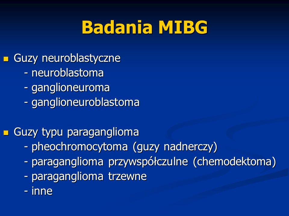 Badania MIBG Guzy neuroblastyczne - neuroblastoma - ganglioneuroma