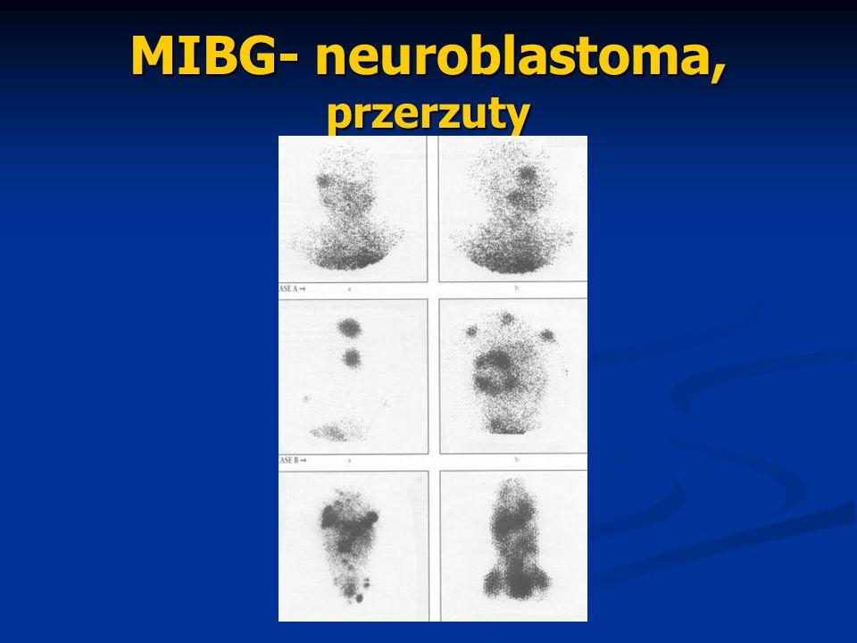MIBG- neuroblastoma, przerzuty
