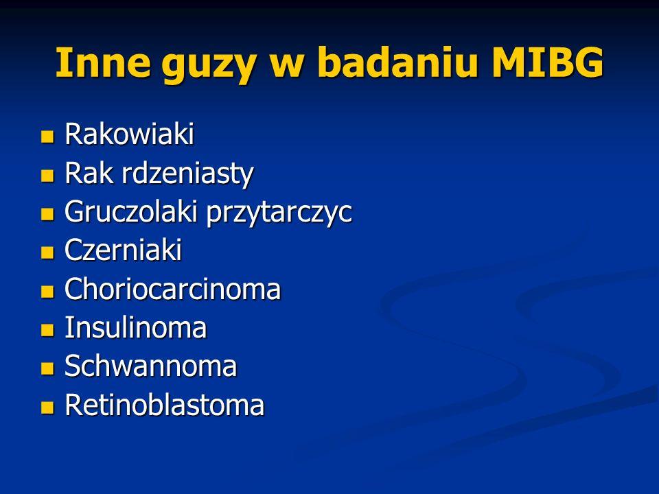 Inne guzy w badaniu MIBG