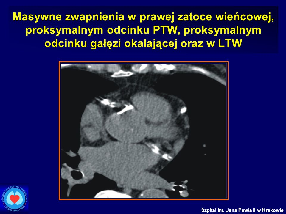 Masywne zwapnienia w prawej zatoce wieńcowej, proksymalnym odcinku PTW, proksymalnym odcinku gałęzi okalającej oraz w LTW