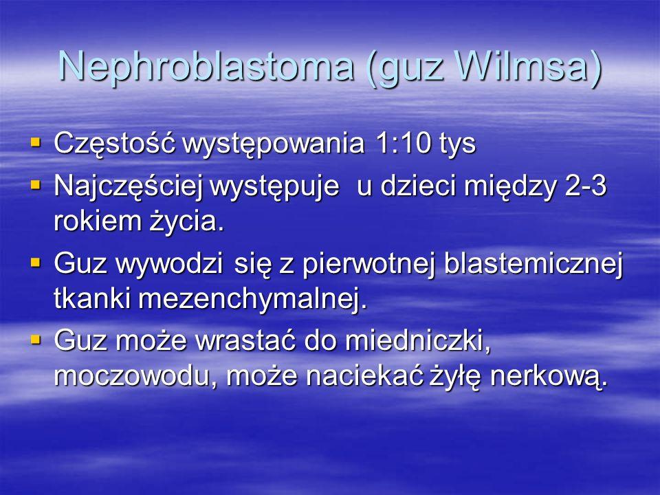Nephroblastoma (guz Wilmsa)
