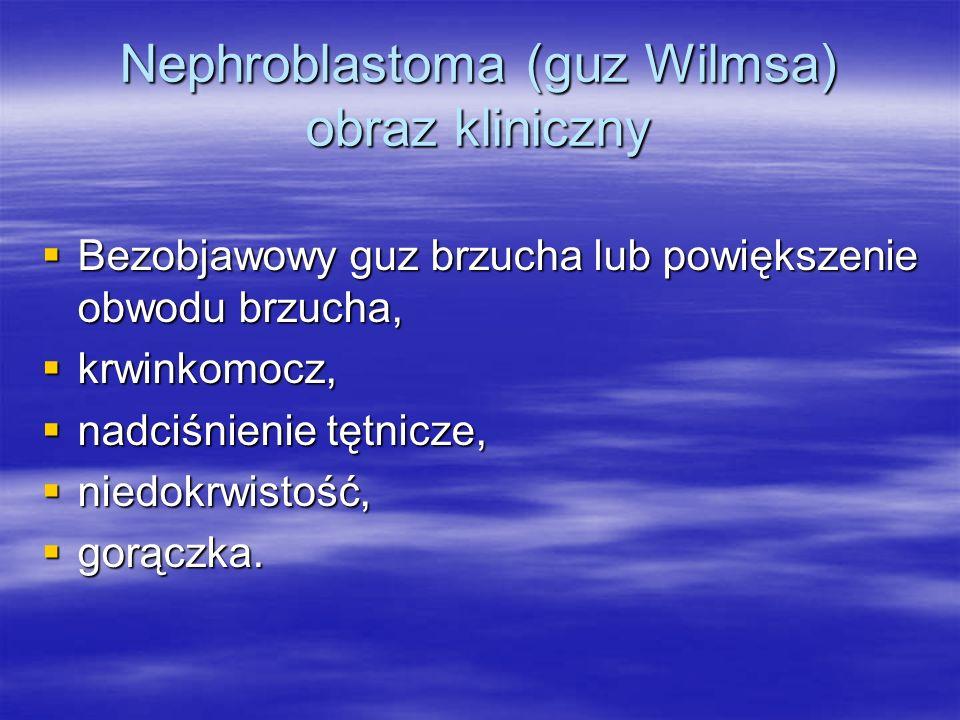 Nephroblastoma (guz Wilmsa) obraz kliniczny