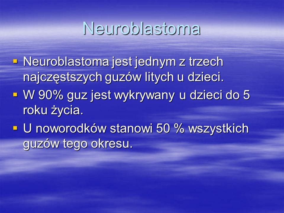 Neuroblastoma Neuroblastoma jest jednym z trzech najczęstszych guzów litych u dzieci. W 90% guz jest wykrywany u dzieci do 5 roku życia.