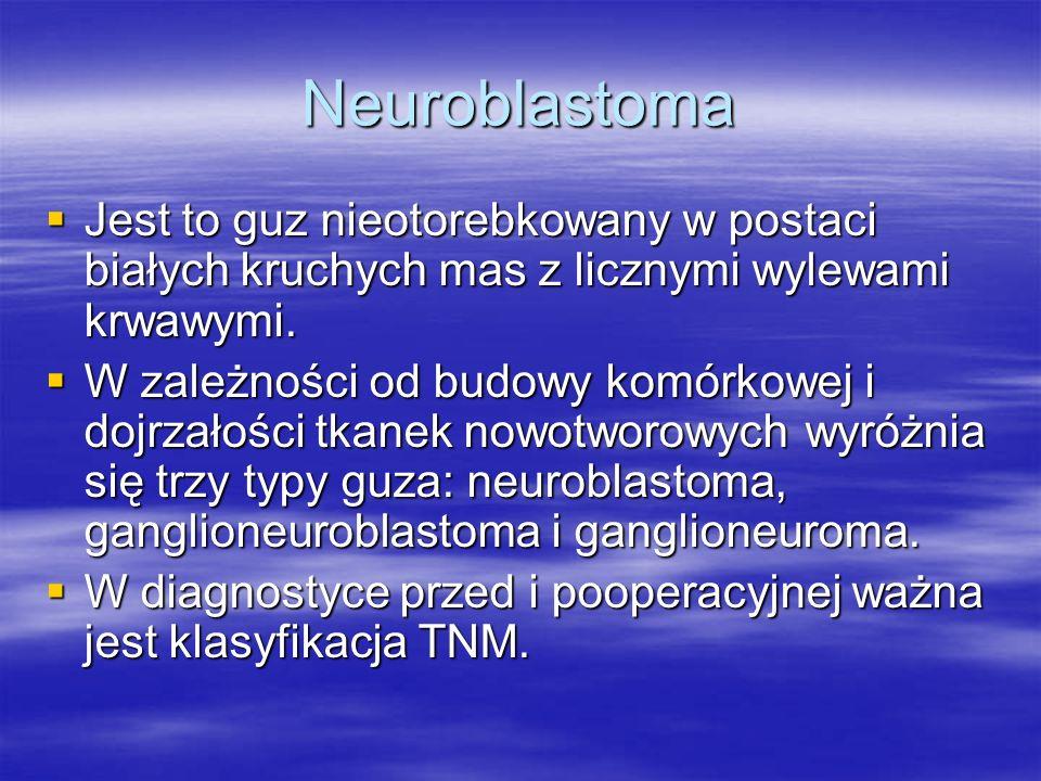 Neuroblastoma Jest to guz nieotorebkowany w postaci białych kruchych mas z licznymi wylewami krwawymi.