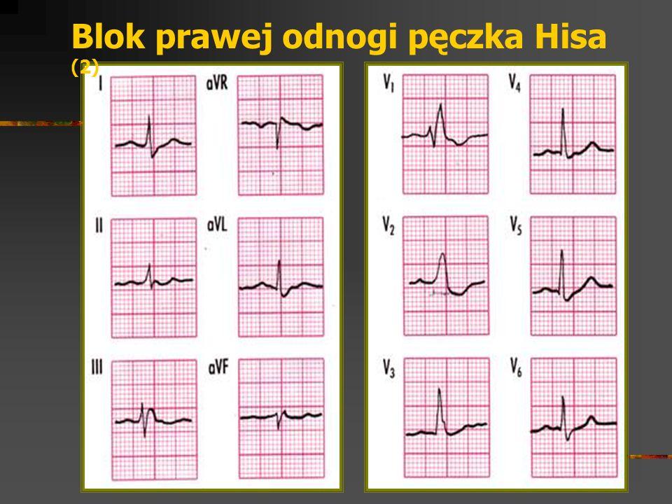 Blok prawej odnogi pęczka Hisa (2)