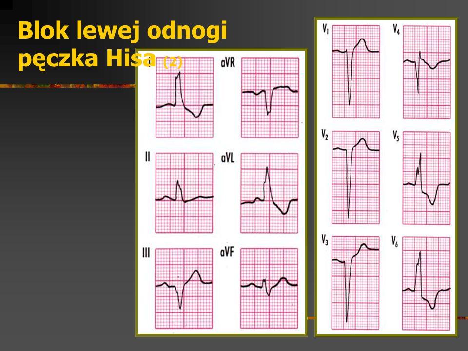 Blok lewej odnogi pęczka Hisa (2)