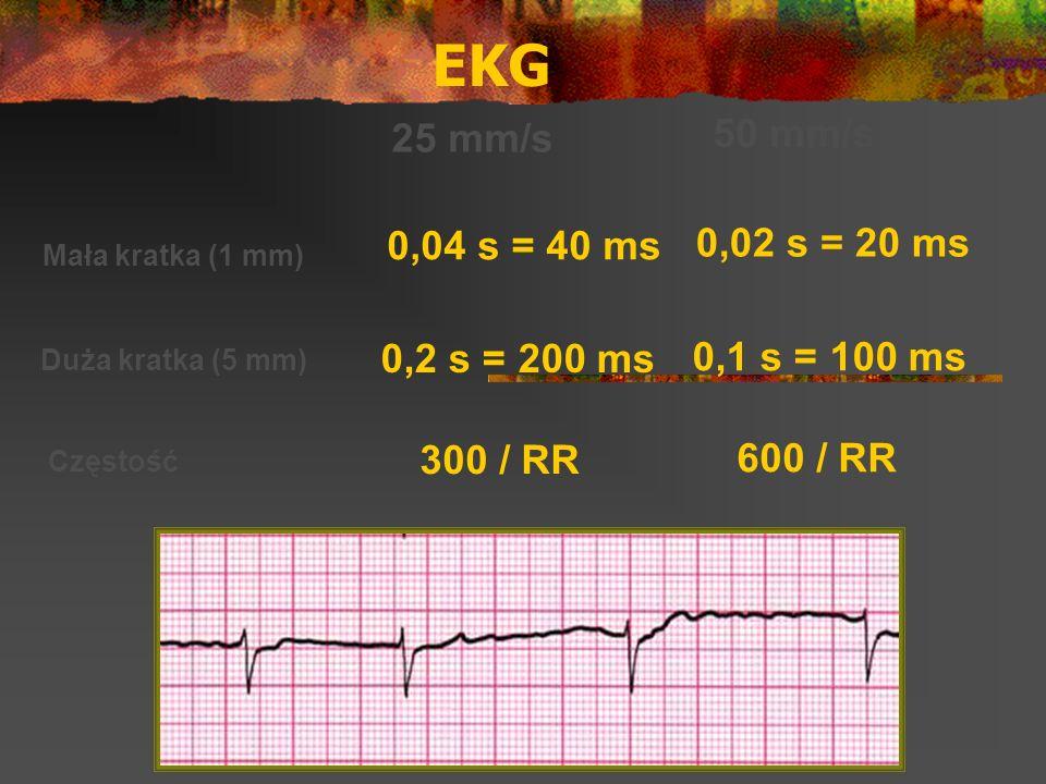 EKG 50 mm/s 25 mm/s 0,04 s = 40 ms 0,02 s = 20 ms 0,2 s = 200 ms