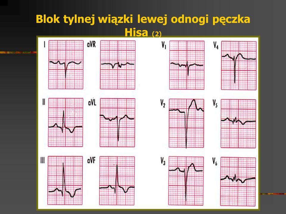 Blok tylnej wiązki lewej odnogi pęczka Hisa (2)
