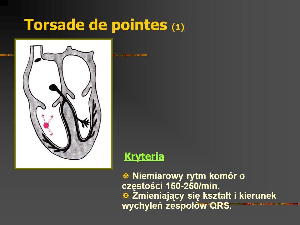 Torsade de pointes (1) Kryteria