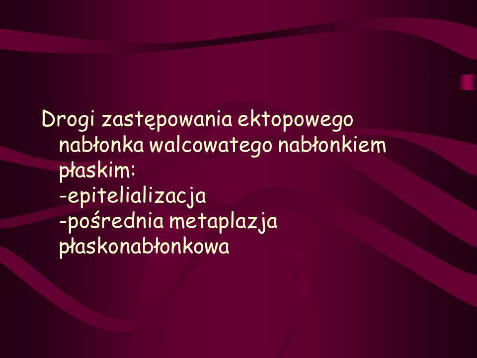 Drogi zastępowania ektopowego nabłonka walcowatego nabłonkiem płaskim: -epitelializacja -pośrednia metaplazja płaskonabłonkowa