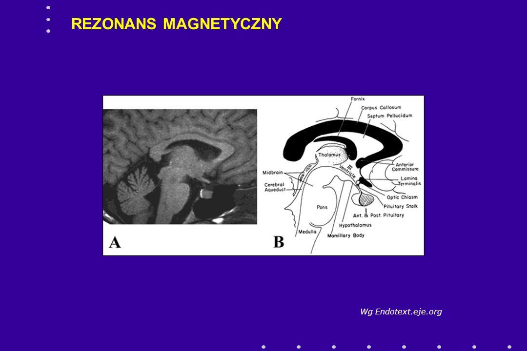 REZONANS MAGNETYCZNY Wg Endotext.eje.org