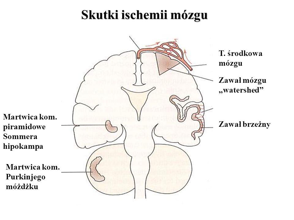 """Skutki ischemii mózgu T. środkowa mózgu Zawał mózgu """"watershed"""