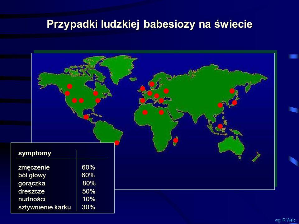 Przypadki ludzkiej babesiozy na świecie