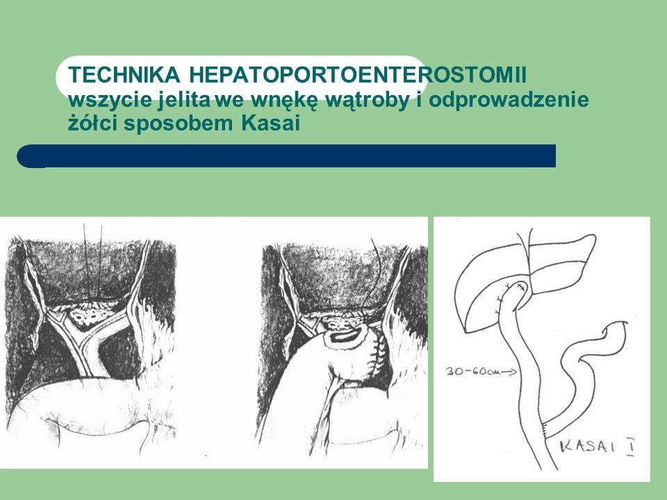 TECHNIKA HEPATOPORTOENTEROSTOMII wszycie jelita we wnękę wątroby i odprowadzenie żółci sposobem Kasai