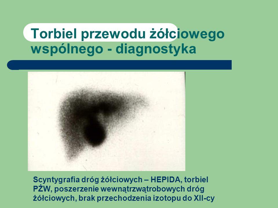 Torbiel przewodu żółciowego wspólnego - diagnostyka
