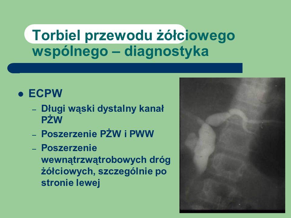 Torbiel przewodu żółciowego wspólnego – diagnostyka
